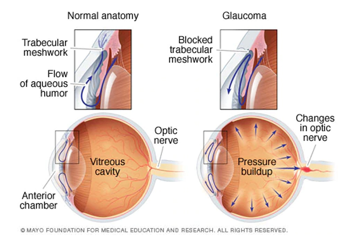 Glaucoma infographic, glaucoma treatment western MA, glaucoma treatment, glaucoma treatment springfield MA